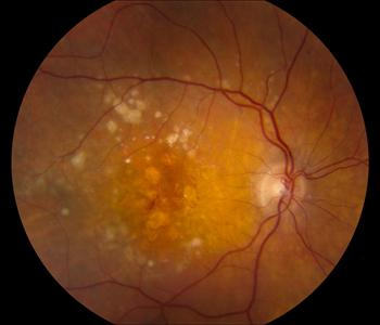Age-related Macular Degeneration2