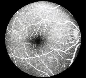 Flourescein Angiography1