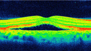 Optical Coherence Tomography 3