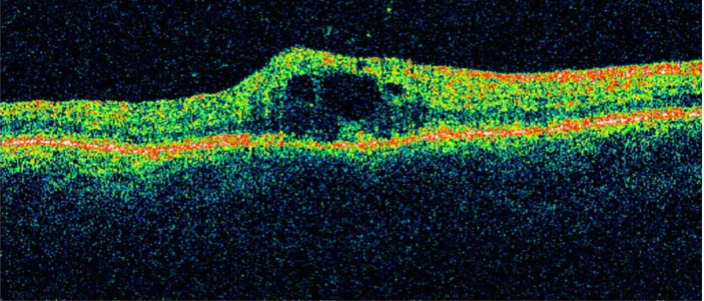 Optical Coherence Tomography 4