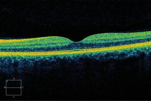 Optical Coherence Tomography1